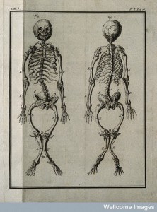 A rachitic skeleton, measuring two feet two inches in length (1749). Credit: Wellcome Library, London.